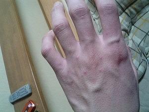 子供の手足口病が感染した!大人でも手足口病になるし痛いので注意